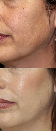 Foto 3 Bioretin before-after