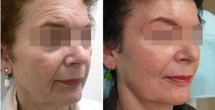 the result of fractional skin rejuvenation before and after photos